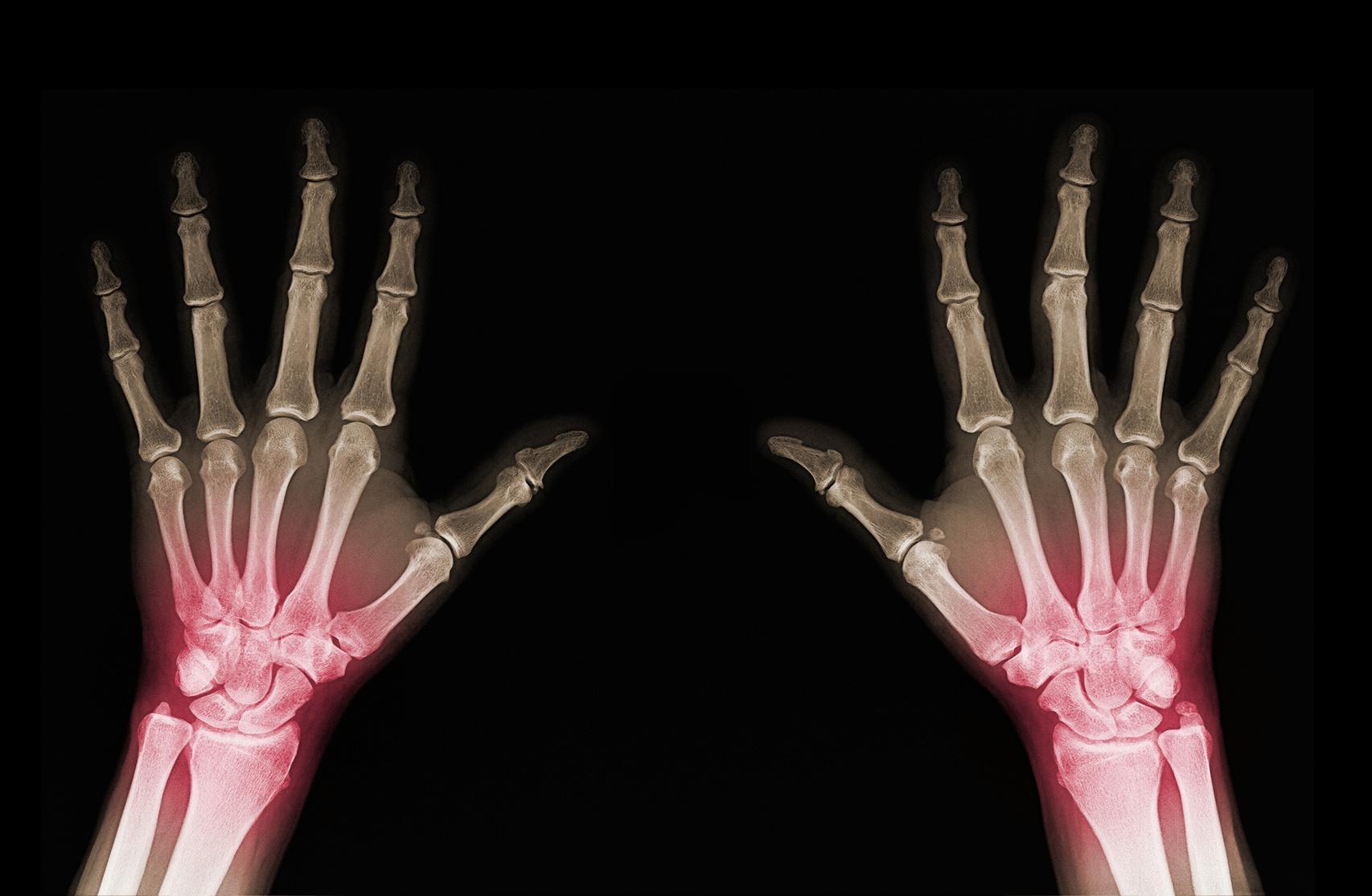 Regenerative Orthopedics Institute image 1