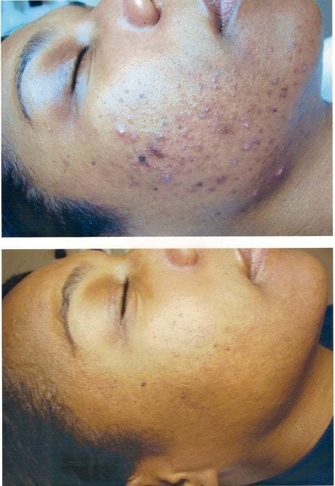 Face Reality Acne Clinic image 2
