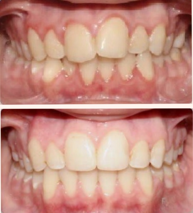 Upland Dental Implant and Orthodontics in Chino, CA, photo #4