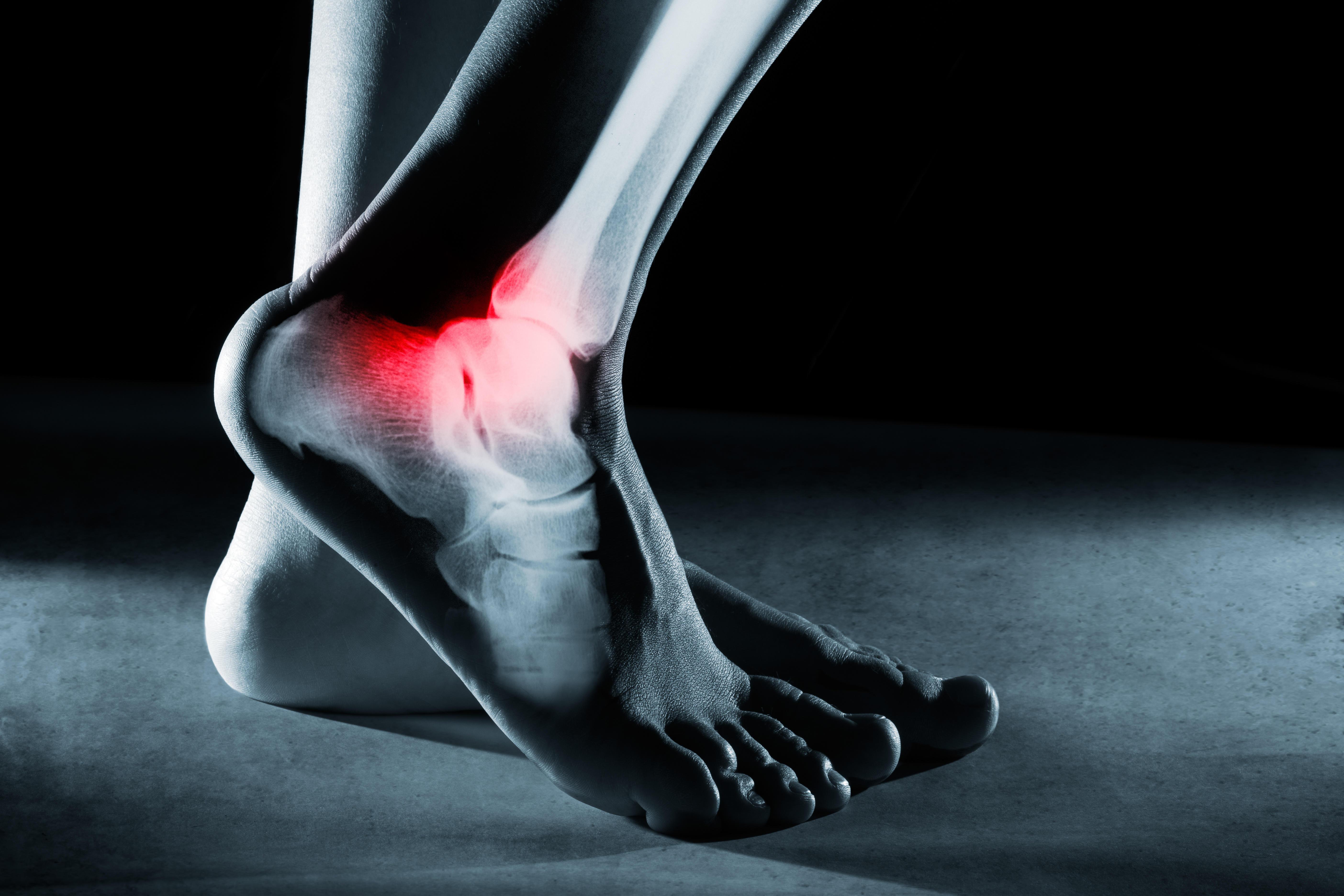 The Frazier Foot & Ankle Center - Dr. Michael J. Frazier image 1