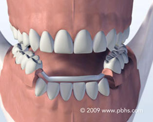 Implantis Oral & Facial Surgery image 4