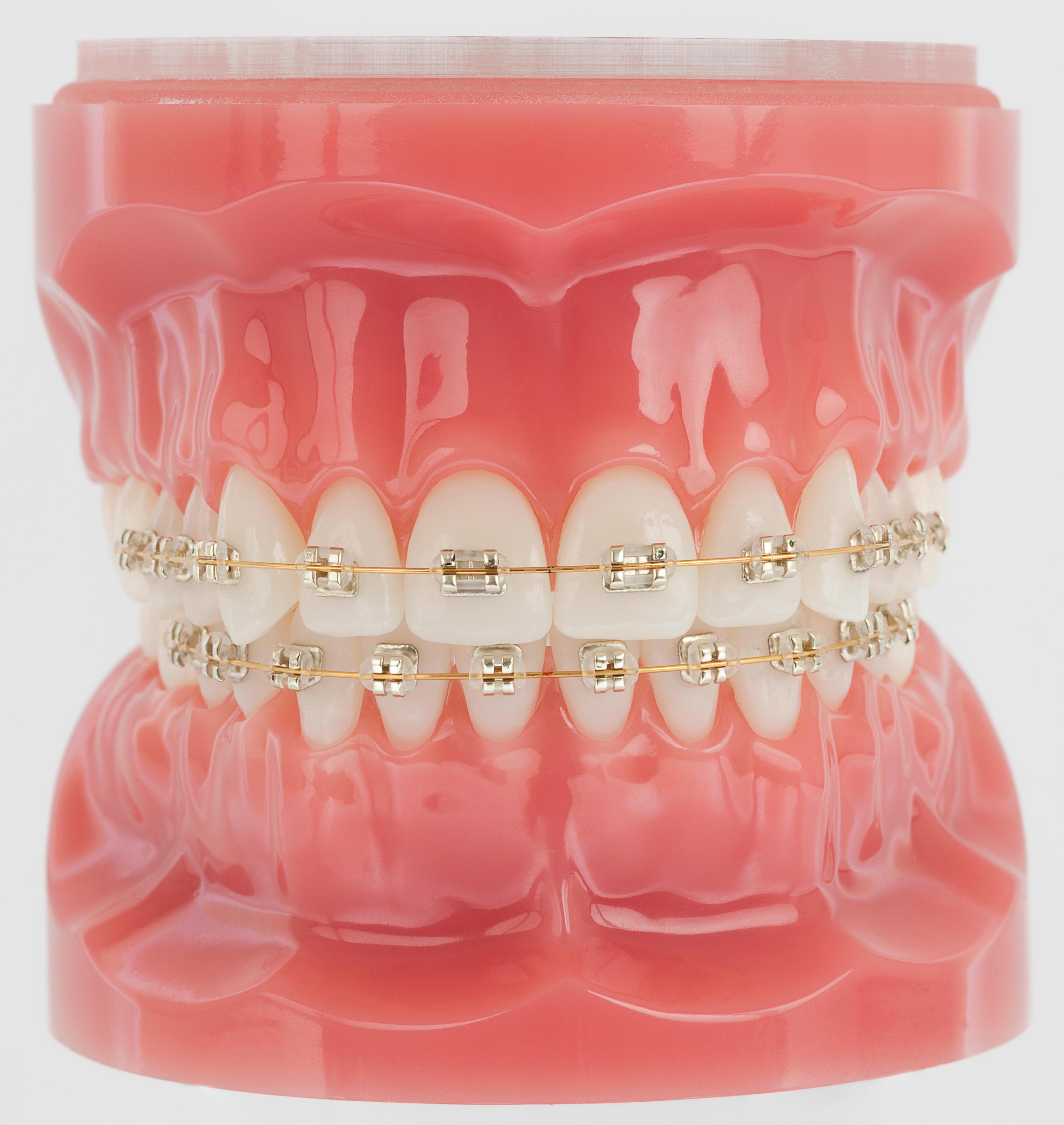 American Orthodontics Company Oukasfo