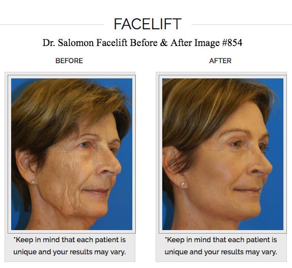 Dr. Jhonny A Salomon Plastic Surgery & Med Spa image 2