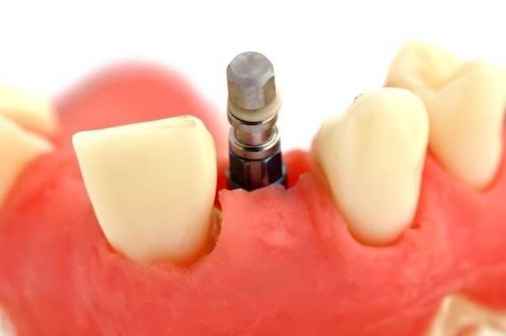 Napanee Dentistry by Dr. Araceli Javier in Napanee
