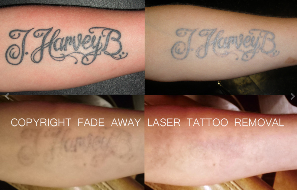 Benchmark tattoo fade away laser tattoo removal duluth for How to fade a tattoo