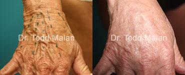 Dr. Todd Malan - Innovative Cosmetic Surgery image 4