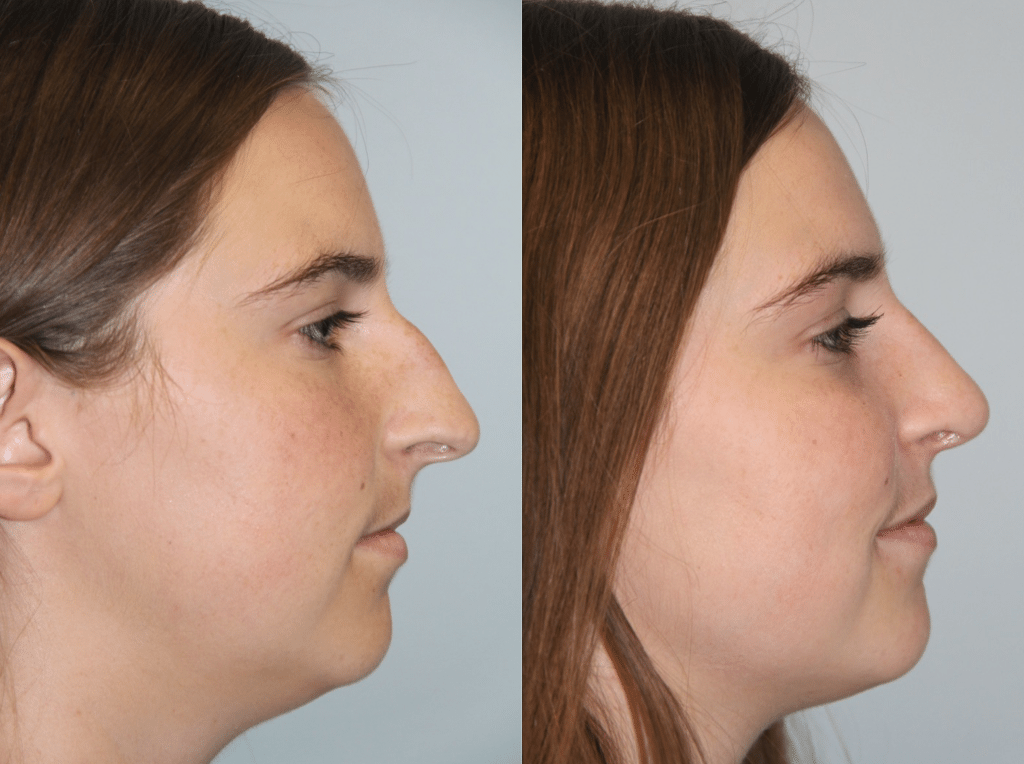 Daines Plastic Surgery image 4