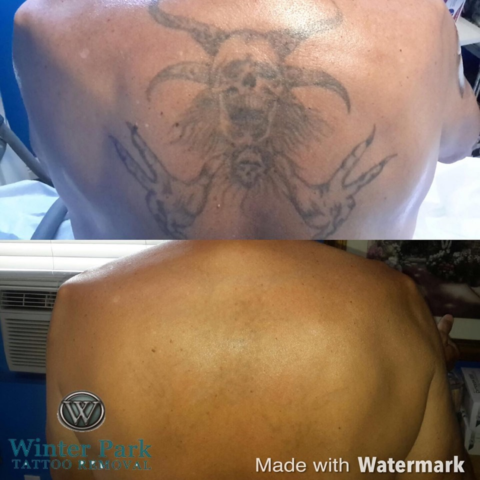 Skin Blemish Removal | Winter Park Tattoo Removal-Winter