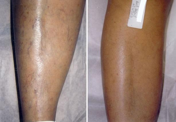 Laser Amp Varicose Vein Treatment Center Coupons Near Me In