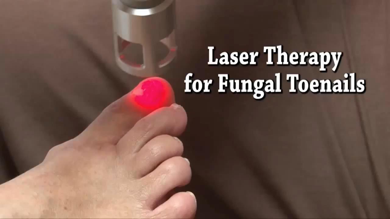 laser therapy for fungal toenails
