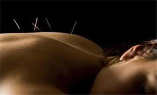 Acupuncteure Isabelle Paquette