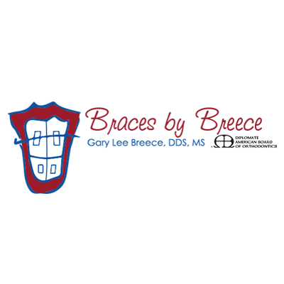 Braces by Breece