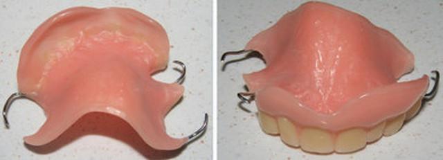 24Hr Dental Repairs