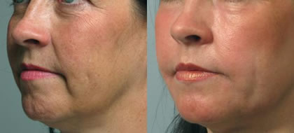 Dr. Poon Cosmetic Medicine Inc Mississauga (905)820-1398