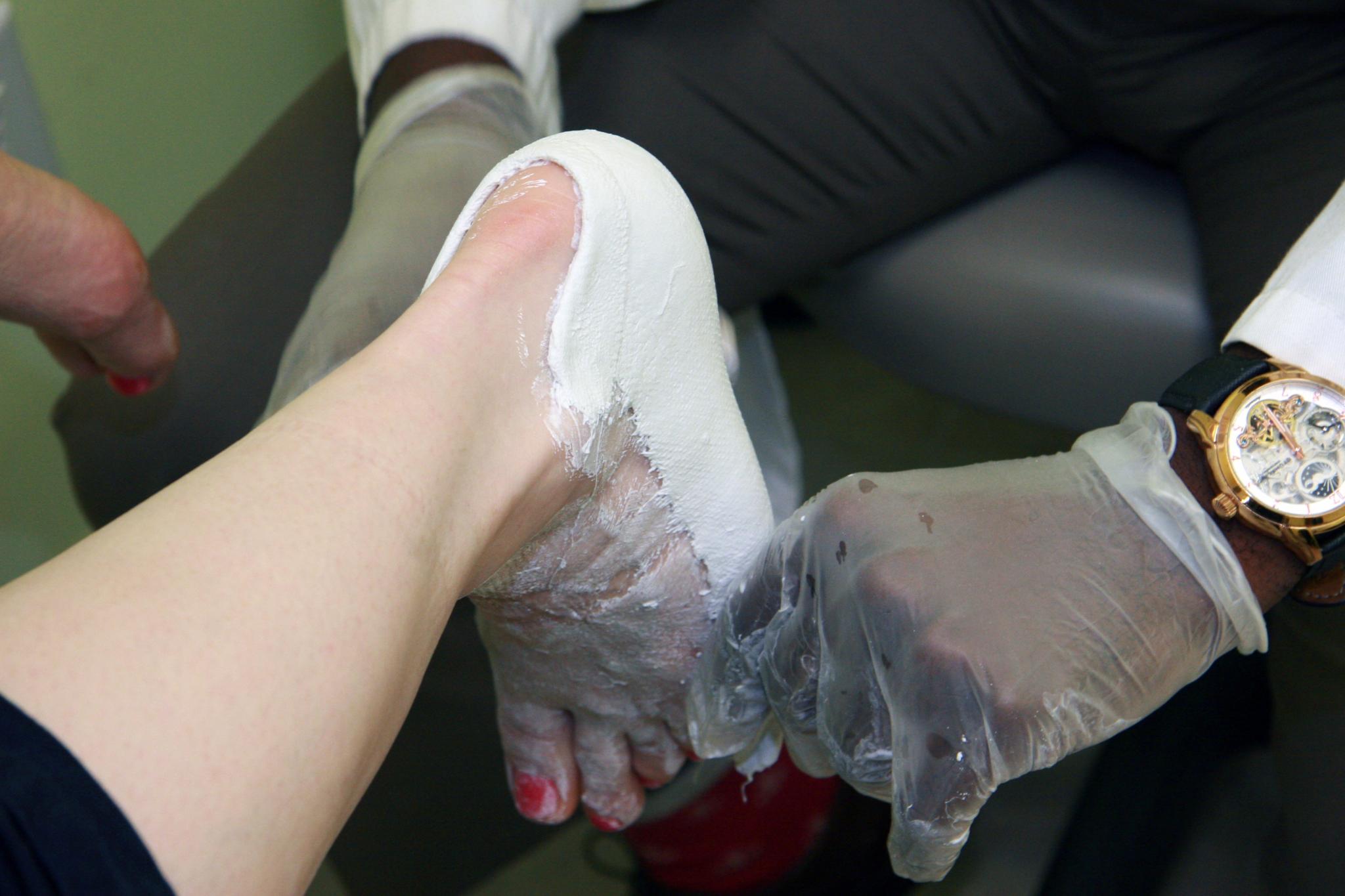 Gait Maxx Foot Care & Custom Orthotics Clinic Niagara Falls (905)358-5008