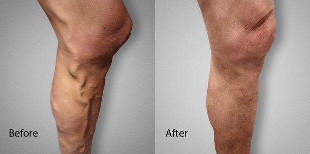 Images Advanced Varicose Vein Treatments of Manhattan