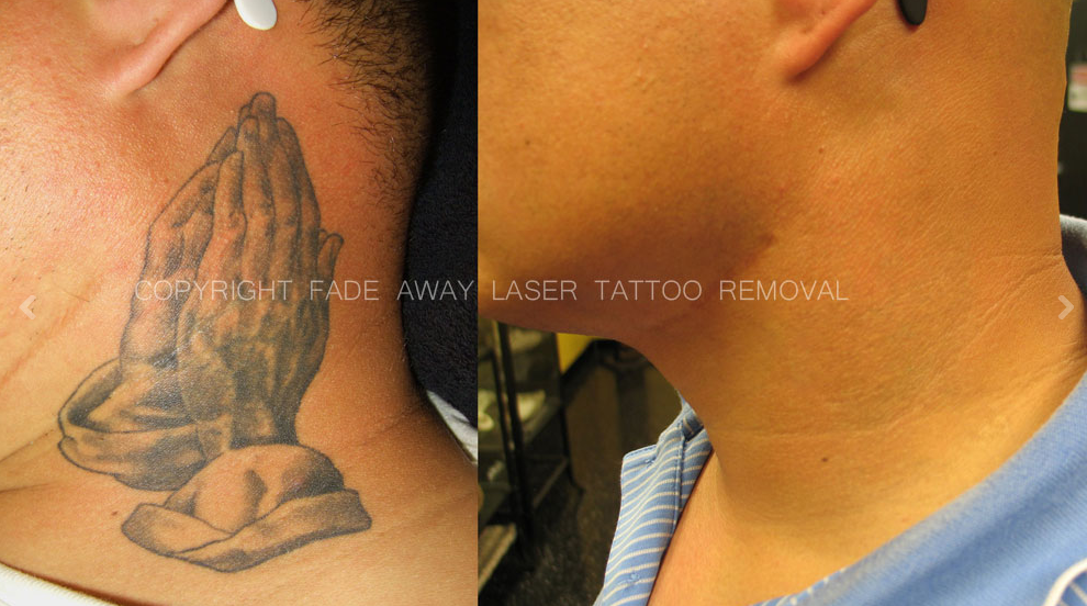 Benchmark tattoo fade away laser tattoo removal in for Tattoo removal business