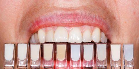 What Is a Dental Veneer?