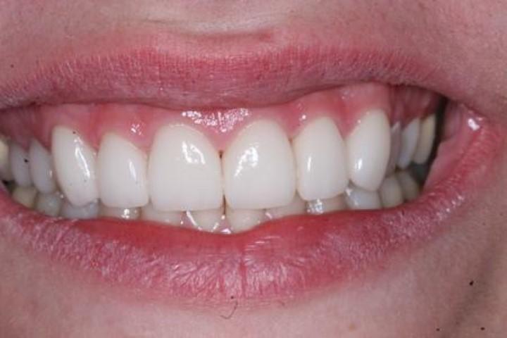 Elite Dental American Fork Dentist Implants 288 Nw State St Ut Dentists Mapquest