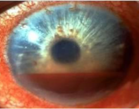 Roth Vision Care, Doctor of Optometry, PLLC image 2