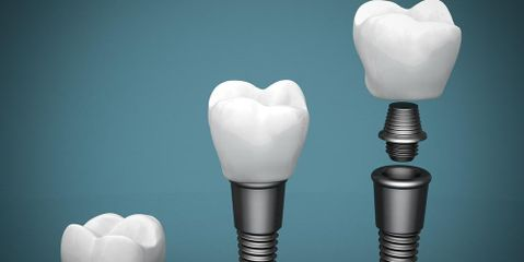 How Do Dental Implants Stay Put and Other Frequently Asked Questions