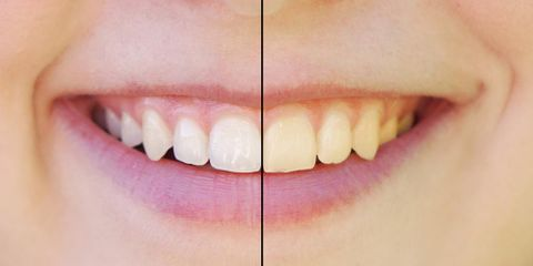 3 Common Misconceptions about Teeth Whitening to Ignore