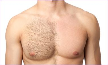 Professional Laser Hair Removal Center