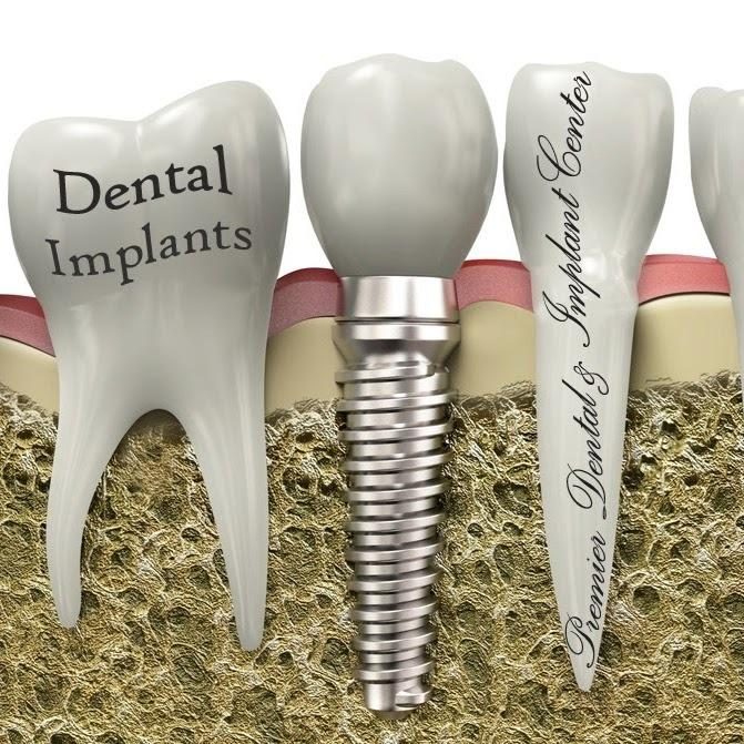 Premier Dental & Implant Center