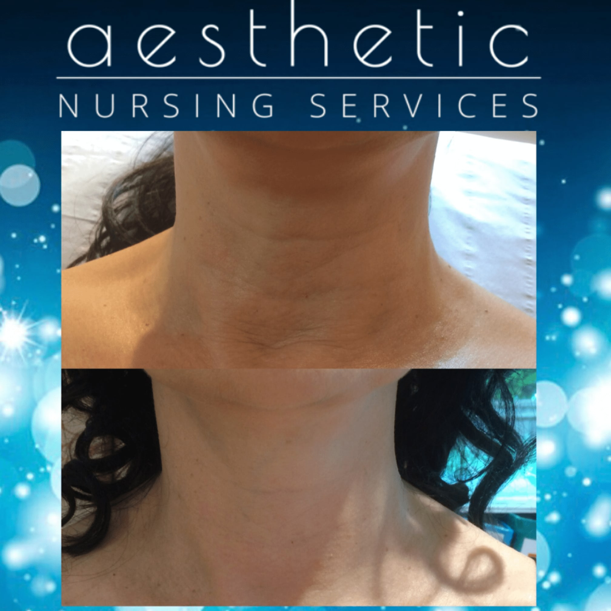 Images Aesthetic Nursing Services