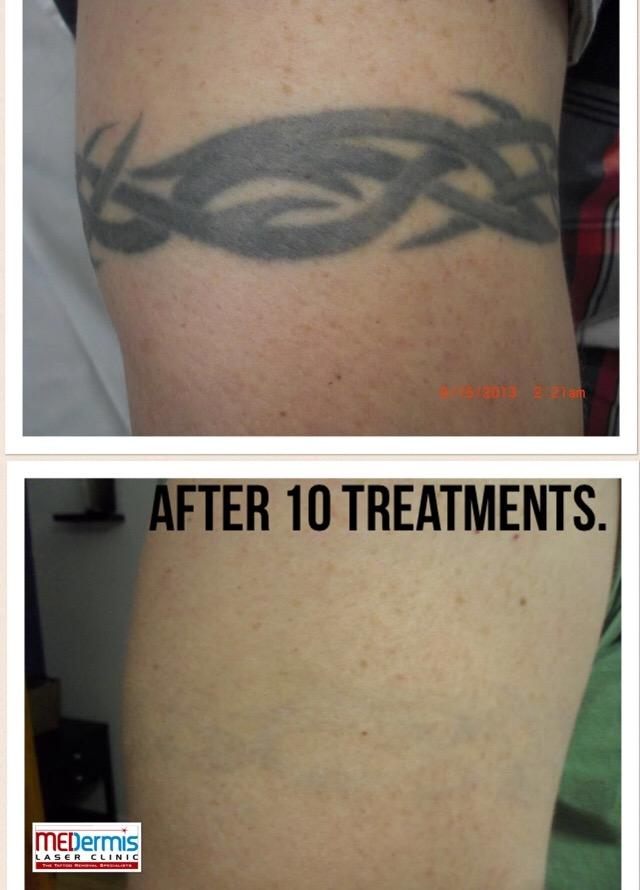 medermis laser tattoo removal in san antonio tx 78258