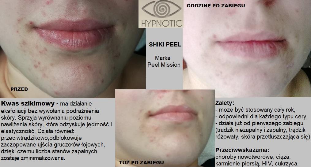 Usługi Kosmetyczne Hypnotic Aleksandra Kowalska