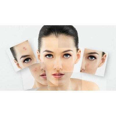 Dott.ssa Marica Annunziata Dermatologa