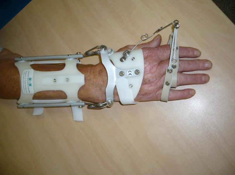 Centrum Technické Ortopedie s.r.o. - protetika ortézy protézy ortopedické pomůcky