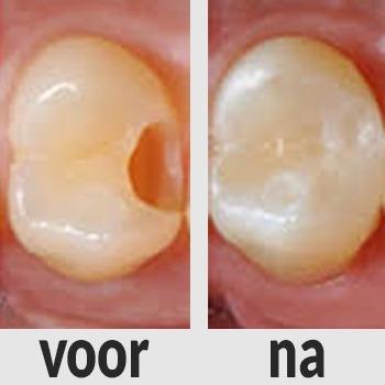 Tandheelkunde Goudsesingel