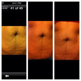 Anyone can take care of the extra flesh on the stomach with our non invasive tummy tuck with micro current and the Beautiful Image application.