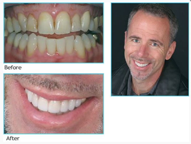 Supremia Dentistry Wake Forest (919)556-6200