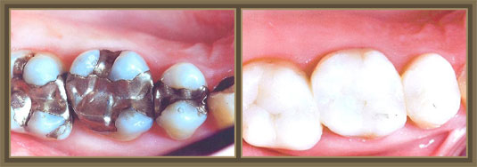 Center for Exceptional Dentistry image 0