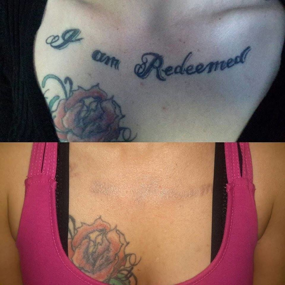 28 tattoo laser removal near me delete tattoo for Tattoo removal maine