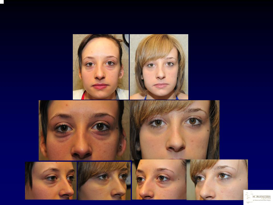 Morgenstern Center for Orbital and Facial Plastic Surgery image 4