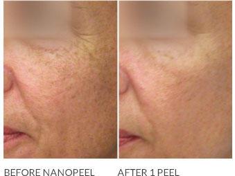 Visage Dermatology