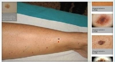 Santini Dr. Marcello - Dermatologo