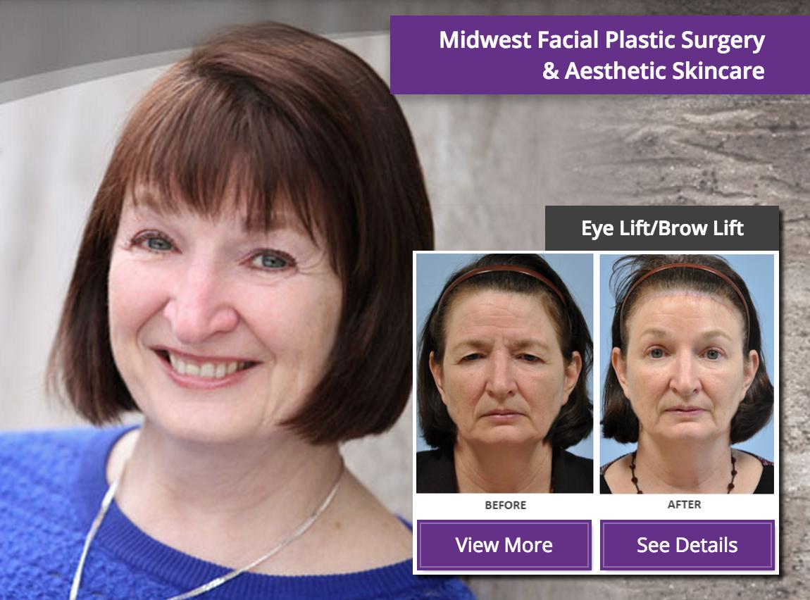 Facial plastic surgery map