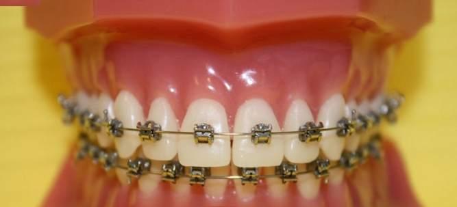 """""""Stomed"""" Sp. z o.o. Ortodoncja"""