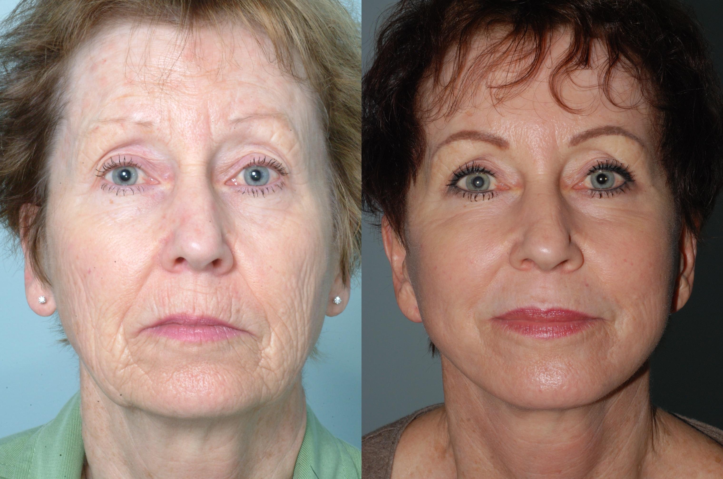 Jasin facial rejuvenation institute