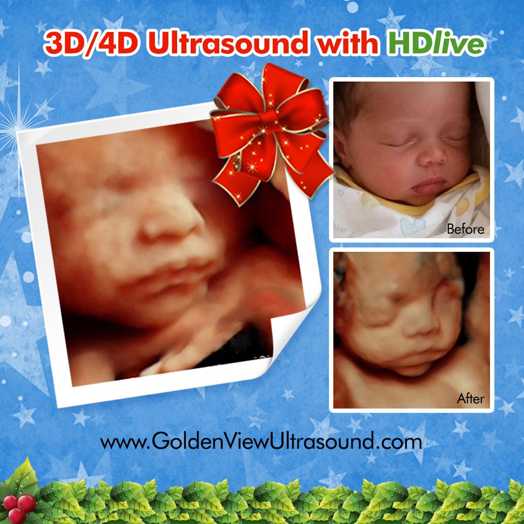 Goldenview Ultrasound 3d 4d Hdlive San Antonio In San Antonio Texas