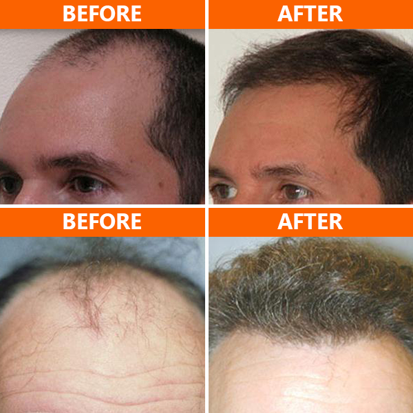San Diego Hair MD offers the NeoGraft® hair transplant procedure, providing patients with natural-looking results! This minimally invasive hair restoration treatment extracts hair follicles from a donor area in the back of your head and implants them where thinning or balding has occurred.