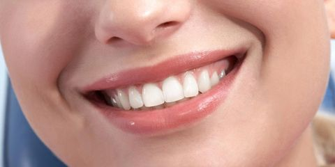 5 Cosmetic Dentistry Procedures to Brighten Your Smile