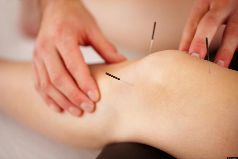 Acupunctuur Annelon de Heer