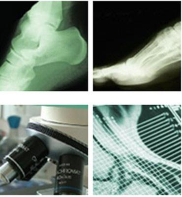 Palladini Dr. Massimo Microchirurgia del Piede e della Caviglia