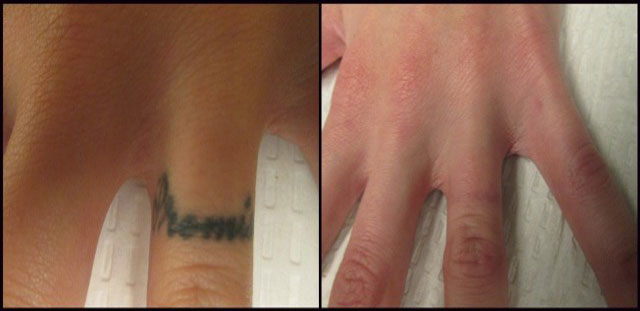 Rethink the ink tattoo removal las vegas coupons near me for Tattoo laser removal near me